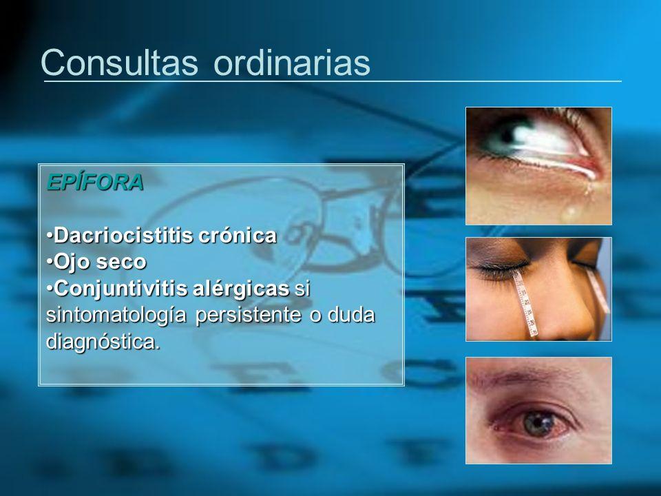 Consultas ordinarias EPÍFORA Dacriocistitis crónicaDacriocistitis crónica Ojo secoOjo seco Conjuntivitis alérgicas si sintomatología persistente o dud