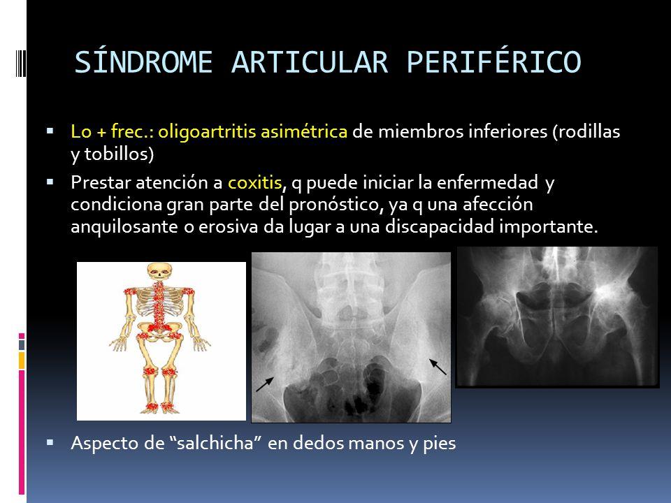 SÍNDROME ARTICULAR PERIFÉRICO Lo + frec.: oligoartritis asimétrica de miembros inferiores (rodillas y tobillos) Prestar atención a coxitis, q puede in