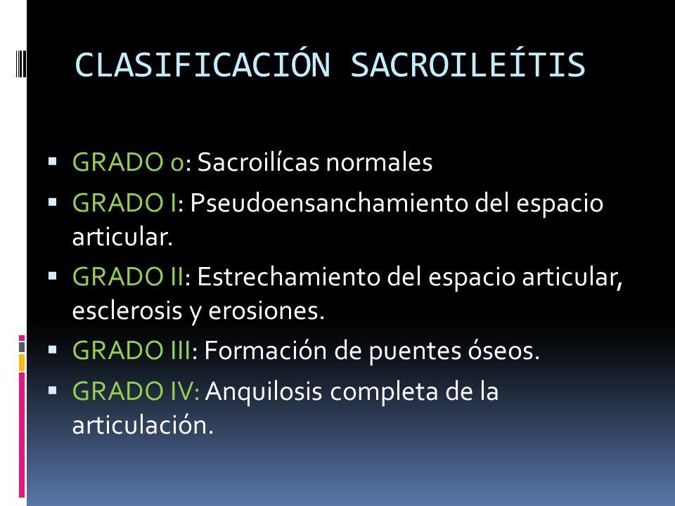 CLASIFICACIÓN SACROILEÍTIS GRADO 0: Sacroilícas normales GRADO I: Pseudoensanchamiento del espacio articular. GRADO II: Estrechamiento del espacio art