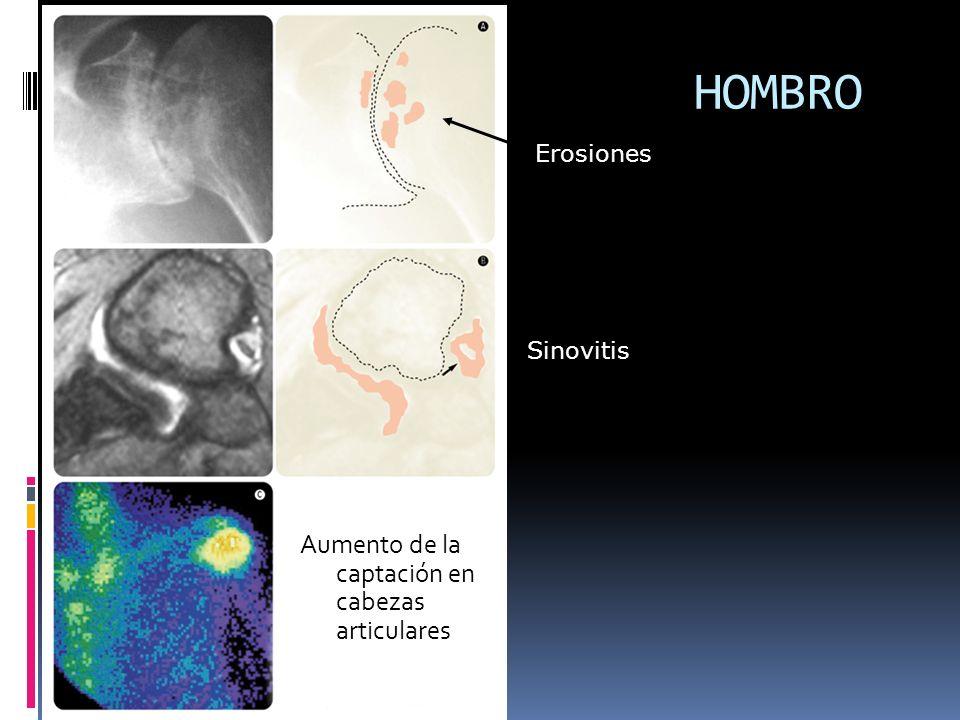 HOMBRO Aumento de la captación en cabezas articulares Erosiones Sinovitis