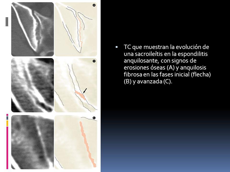 TC que muestran la evolución de una sacroileítis en la espondilitis anquilosante, con signos de erosiones óseas (A) y anquilosis fibrosa en las fases