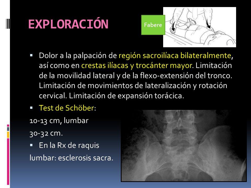 TAC DORSO-LUMBO-SACRO Afectación de ambas sacroilíacas, con esclerosis en porción ilíaca, irregularidad en borde articular con pequeñas erosiones y ensanchamiento de la misma = SACROILEÍTIS BILATERAL.