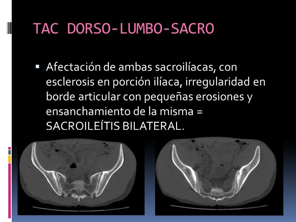 TAC DORSO-LUMBO-SACRO Afectación de ambas sacroilíacas, con esclerosis en porción ilíaca, irregularidad en borde articular con pequeñas erosiones y en