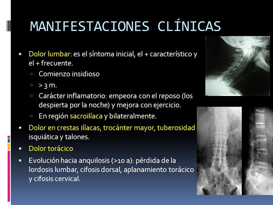 MANIFESTACIONES CLÍNICAS Dolor lumbar: es el síntoma inicial, el + característico y el + frecuente. Comienzo insidioso > 3 m. Carácter inflamatorio: e