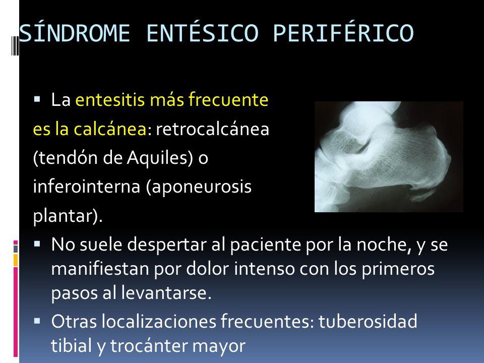 SÍNDROME ENTÉSICO PERIFÉRICO La entesitis más frecuente es la calcánea: retrocalcánea (tendón de Aquiles) o inferointerna (aponeurosis plantar). No su