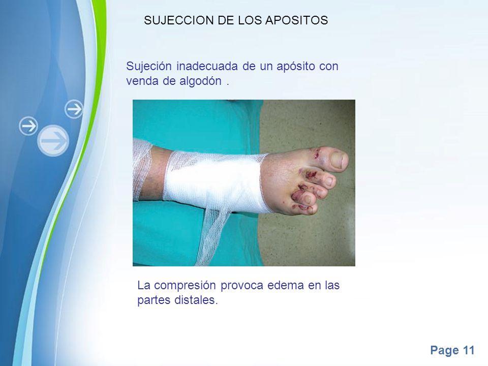 Page 11 SUJECCION DE LOS APOSITOS Sujeción inadecuada de un apósito con venda de algodón. La compresión provoca edema en las partes distales.