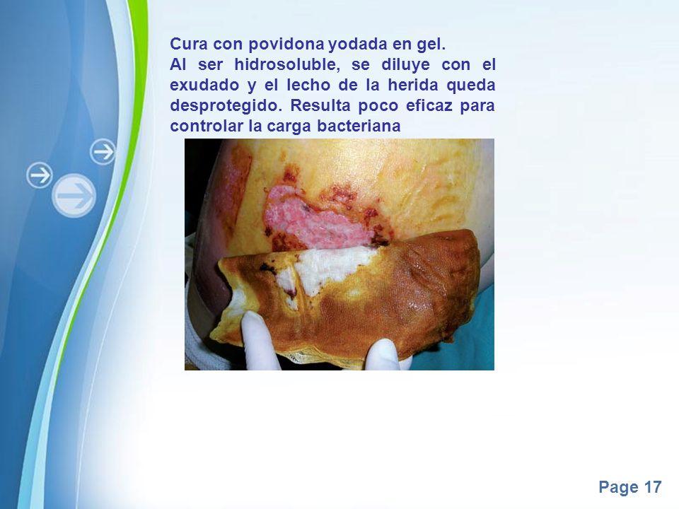 Page 17 Cura con povidona yodada en gel. Al ser hidrosoluble, se diluye con el exudado y el lecho de la herida queda desprotegido. Resulta poco eficaz