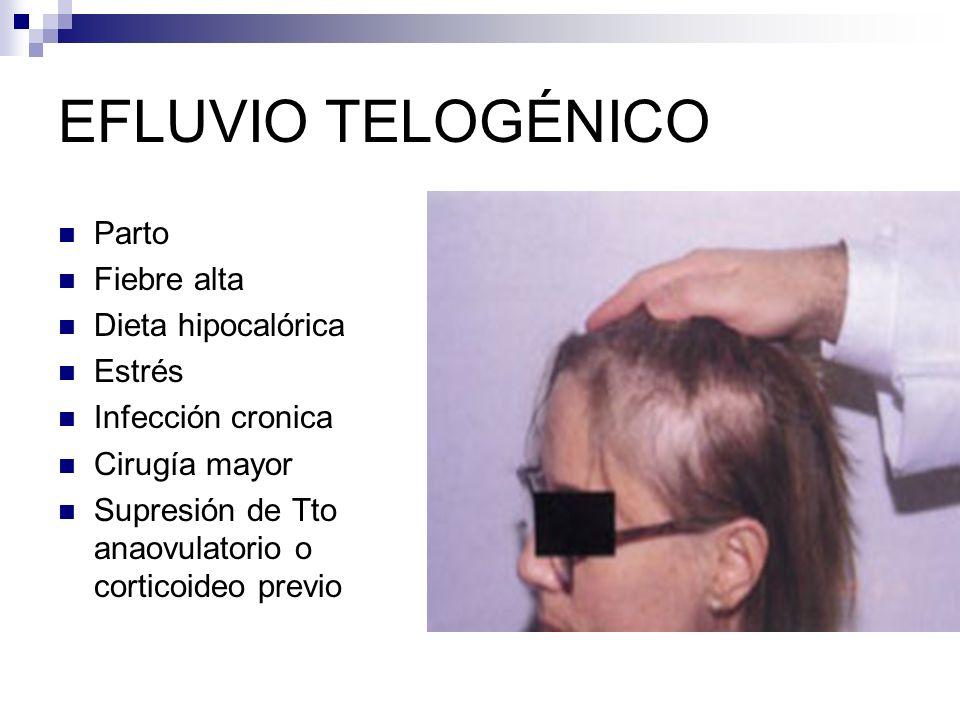 EFLUVIO TELOGÉNICO Parto Fiebre alta Dieta hipocalórica Estrés Infección cronica Cirugía mayor Supresión de Tto anaovulatorio o corticoideo previo