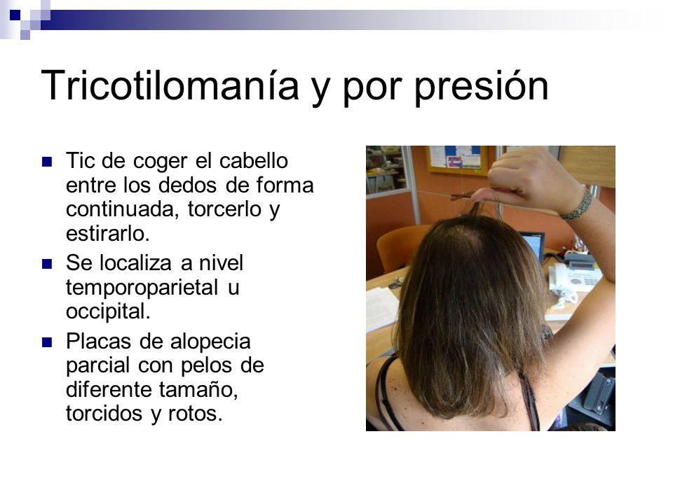 Tricotilomanía y por presión Tic de coger el cabello entre los dedos de forma continuada, torcerlo y estirarlo. Se localiza a nivel temporoparietal u