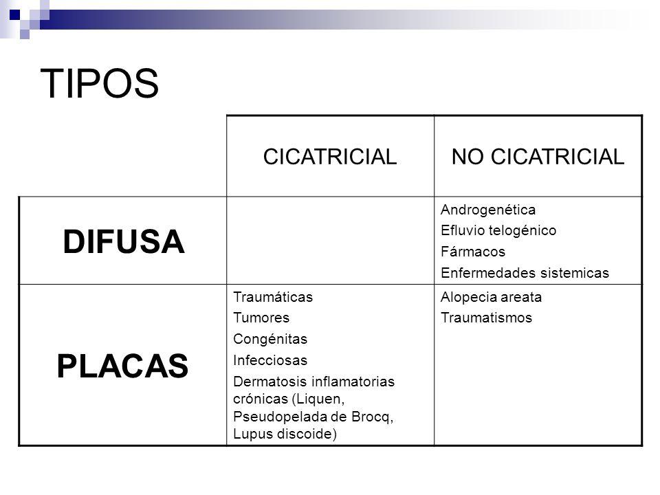 TIPOS CICATRICIALNO CICATRICIAL DIFUSA Androgenética Efluvio telogénico Fármacos Enfermedades sistemicas PLACAS Traumáticas Tumores Congénitas Infecciosas Dermatosis inflamatorias crónicas (Liquen, Pseudopelada de Brocq, Lupus discoide) Alopecia areata Traumatismos