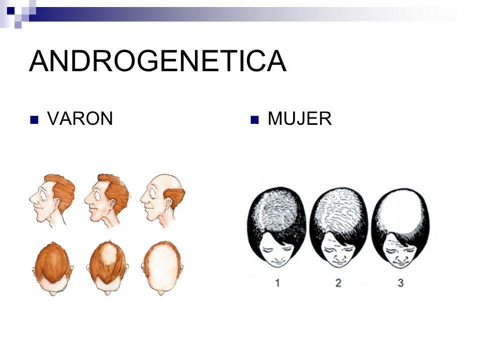 DERMATOSIS INFLAMATORIAS CRÓNICAS CARACTERÍSTICAS LIQUEN PLANO Afectación en cuero cabelludo, dejando áreas de alopecia residual.