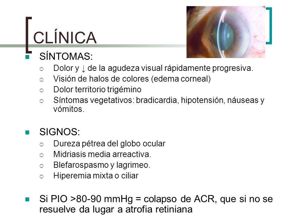 CLÍNICA SÍNTOMAS: Dolor y de la agudeza visual rápidamente progresiva. Visión de halos de colores (edema corneal) Dolor territorio trigémino Síntomas