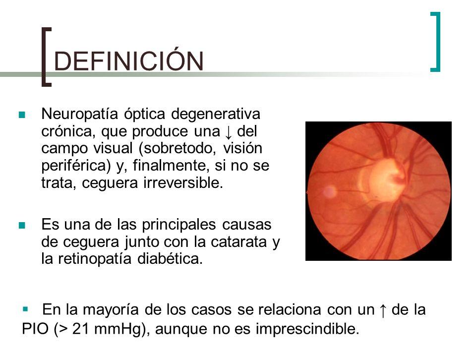 CLASIFICACIÓN Glaucomas Primarios: Glaucoma primario de ángulo abierto o glaucoma crónico simple (GPAA): ángulo iridocorneal normal, aunque existe de la R en el drenaje trabecular.