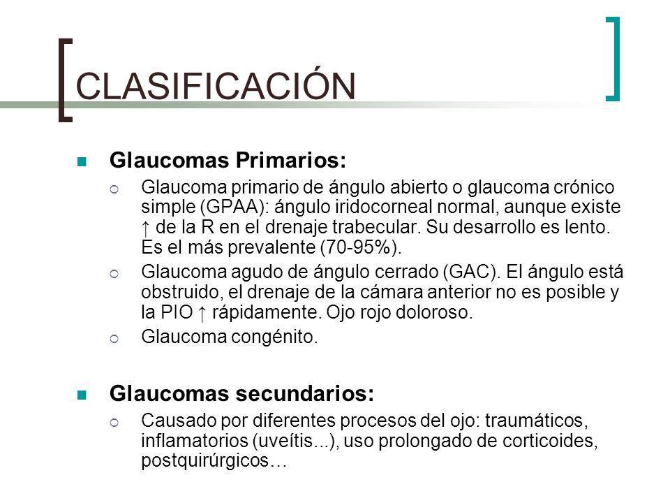 CLASIFICACIÓN Glaucomas Primarios: Glaucoma primario de ángulo abierto o glaucoma crónico simple (GPAA): ángulo iridocorneal normal, aunque existe de