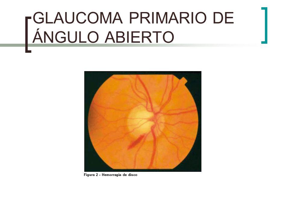 GLAUCOMA DE ÁNGULO CERRADO El ataque agudo se produce cuando la pupila está en midriasis media = bloqueo del paso de h.