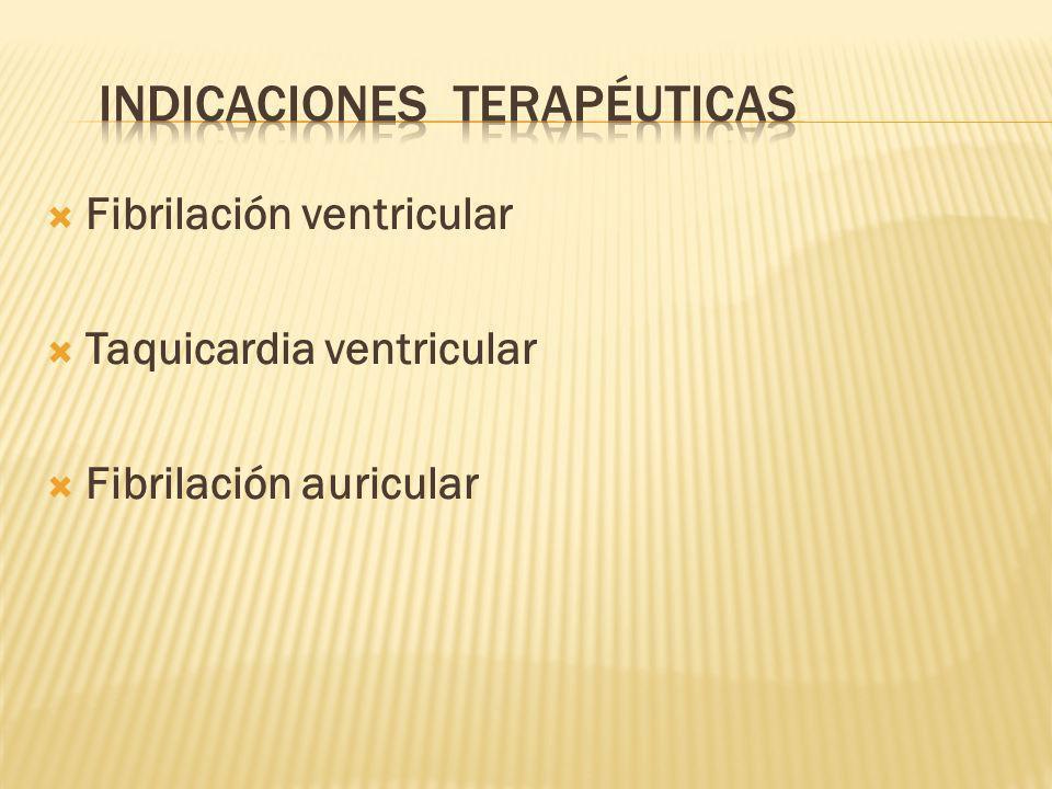 Fibrilación ventricular Taquicardia ventricular Fibrilación auricular