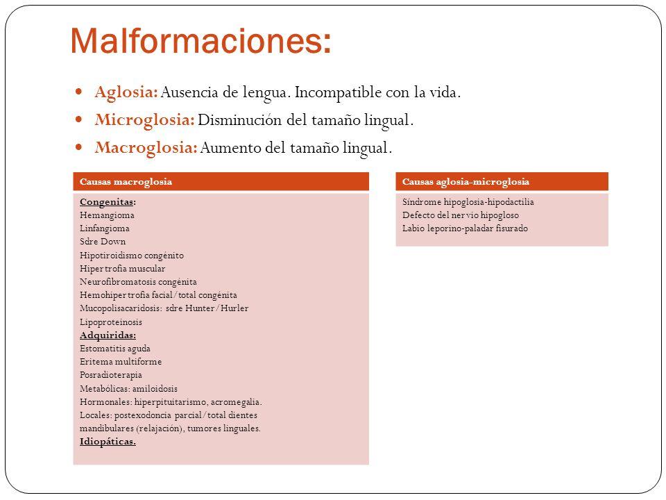 Malformaciones: Aglosia: Ausencia de lengua. Incompatible con la vida. Microglosia: Disminución del tamaño lingual. Macroglosia: Aumento del tamaño li