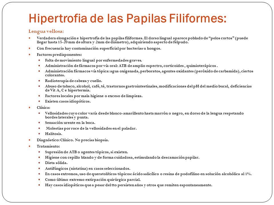 Hipertrofia de las Papilas Filiformes: Lengua vellosa: Verdadera elongación e hipertrofia de las papilas filiformes. El dorso lingual aparece poblado