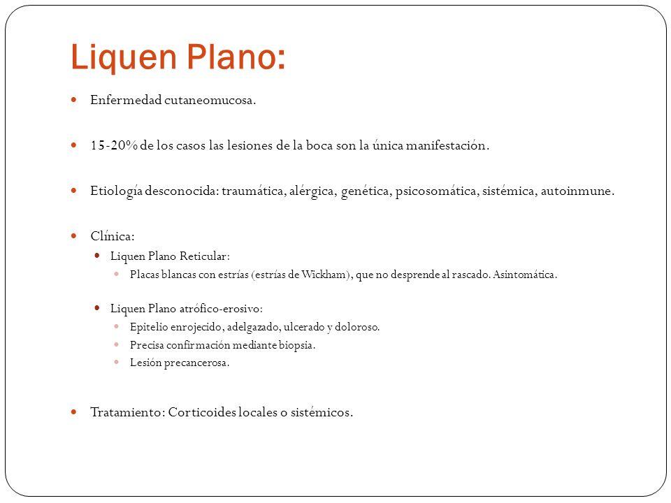 Liquen Plano: Enfermedad cutaneomucosa. 15-20% de los casos las lesiones de la boca son la única manifestación. Etiología desconocida: traumática, alé