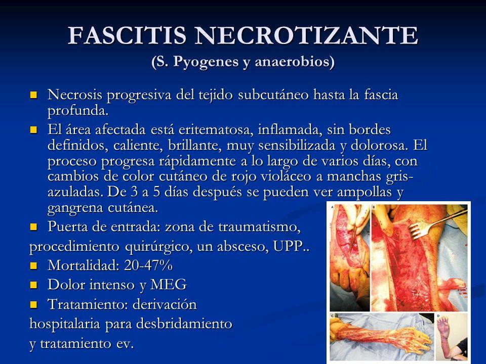 FASCITIS NECROTIZANTE (S. Pyogenes y anaerobios) Necrosis progresiva del tejido subcutáneo hasta la fascia profunda. Necrosis progresiva del tejido su