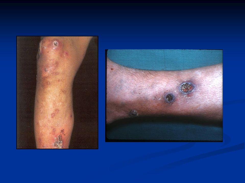 ECTIMA (S.Pyogenes) Clínica: Clínica: Lesión ulcerada con costra en piernas.