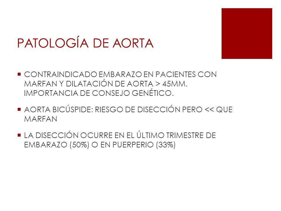 PATOLOGÍA DE AORTA CONTRAINDICADO EMBARAZO EN PACIENTES CON MARFAN Y DILATACIÓN DE AORTA > 45MM. IMPORTANCIA DE CONSEJO GENÉTICO. AORTA BICÚSPIDE: RIE