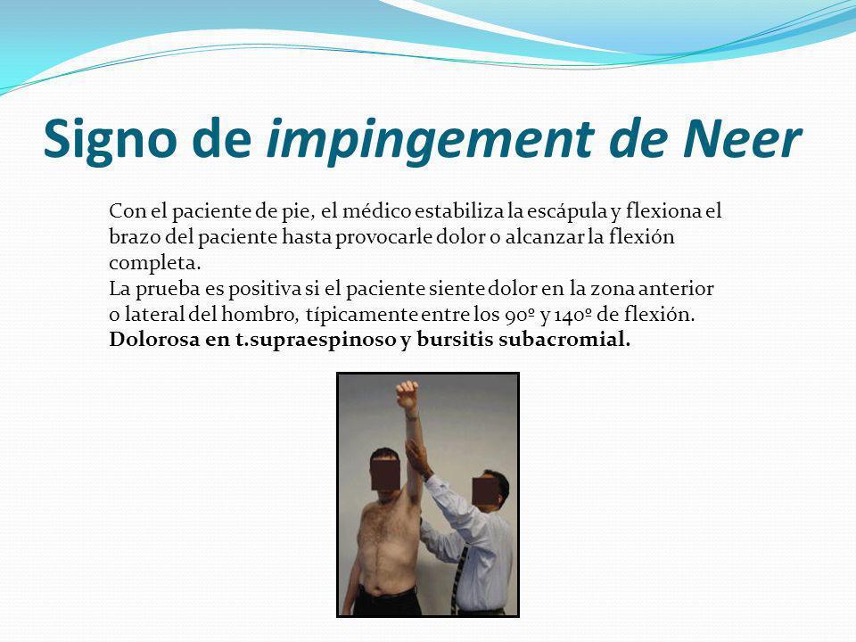 Signo de impingement de Neer Con el paciente de pie, el médico estabiliza la escápula y flexiona el brazo del paciente hasta provocarle dolor o alcanzar la flexión completa.