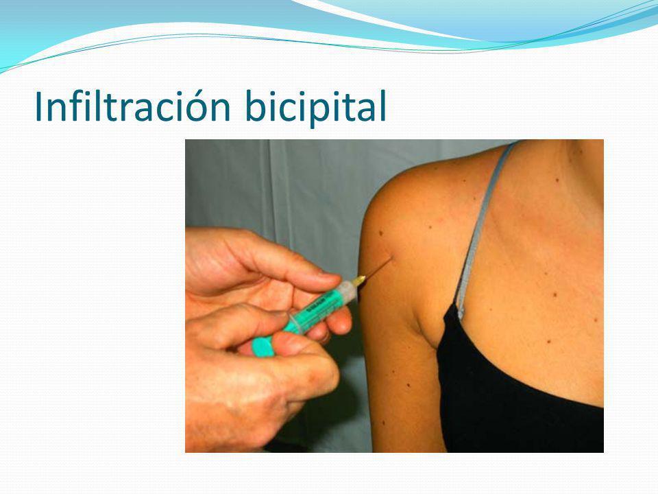 Infiltración bicipital