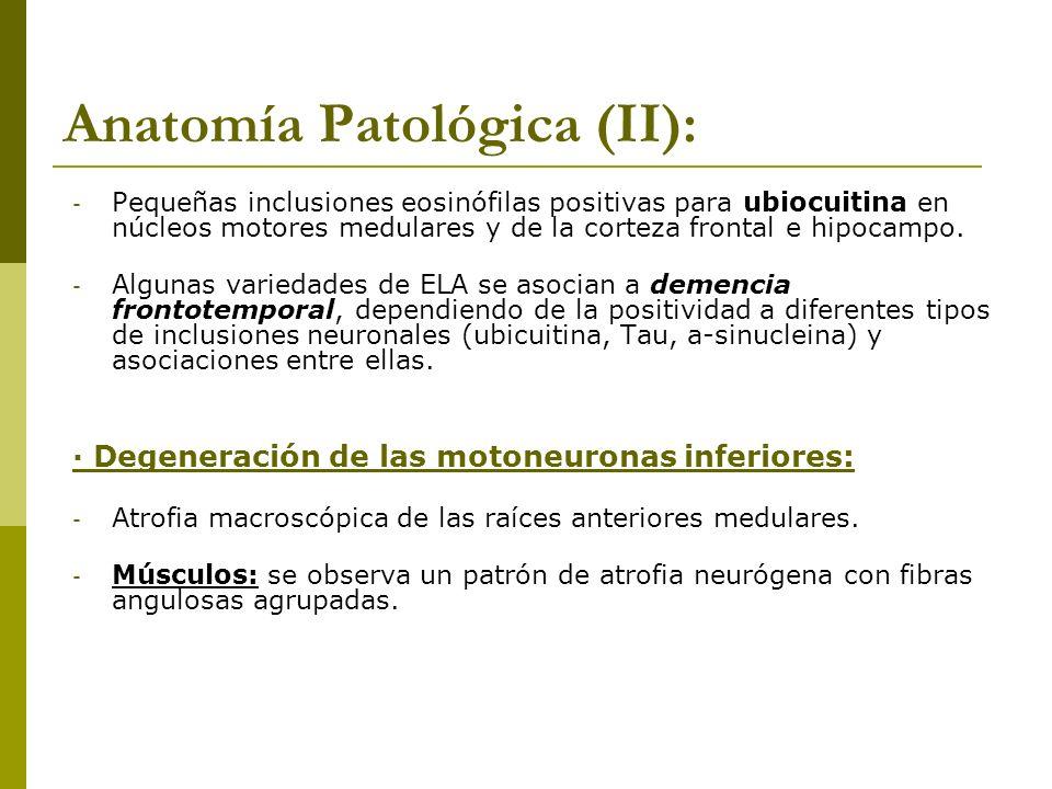 Anatomía Patológica (II): - Pequeñas inclusiones eosinófilas positivas para ubiocuitina en núcleos motores medulares y de la corteza frontal e hipocam