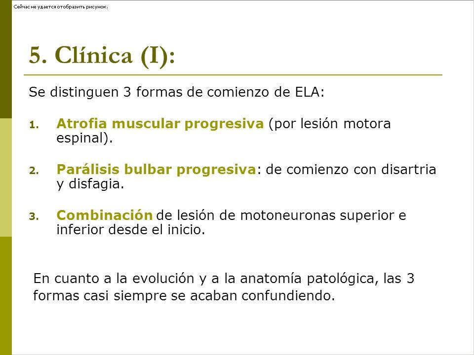 Clínica (II): Presencia de signos y síntomas de las 2 motoneuronas: Signos y síntomas Motoneurona Superior: - Pérdida destreza (lentitud al ejecutar movimientos) - Pérdida fuerza muscular (debilidad) - Espasticidad (tensión muscular al estiramiento) - Hiperreflexia y reflejos patológicos (Babinski) - Parálisis pseudobulbar (risa y llanto espontáneo e inmotivado, afectación bulbar con disfagia, disartria) - Espasmos flexores (movimientos bruscos piernas) Signos y síntomas Motoneurona Inferior: - Pérdida de fuerza muscular (debilidad) - Pérdida de masa muscular (atrofia) - Hipotonía - Hipo o arreflexia - Fasciculaciones: contracciones muscules espontáneas.
