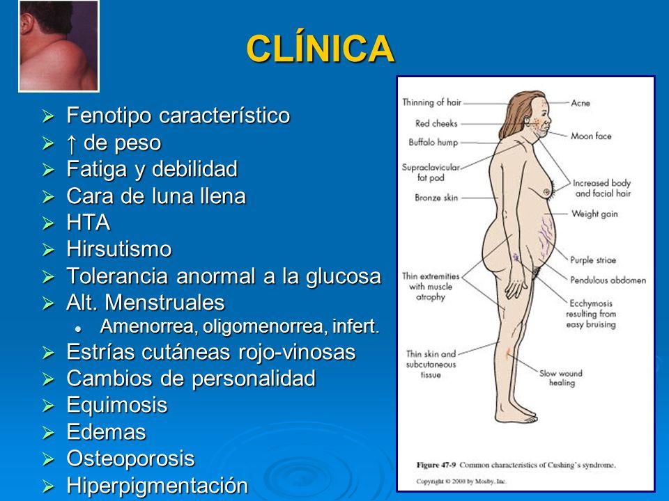 CLÍNICA Fenotipo característico Fenotipo característico de peso de peso Fatiga y debilidad Fatiga y debilidad Cara de luna llena Cara de luna llena HT