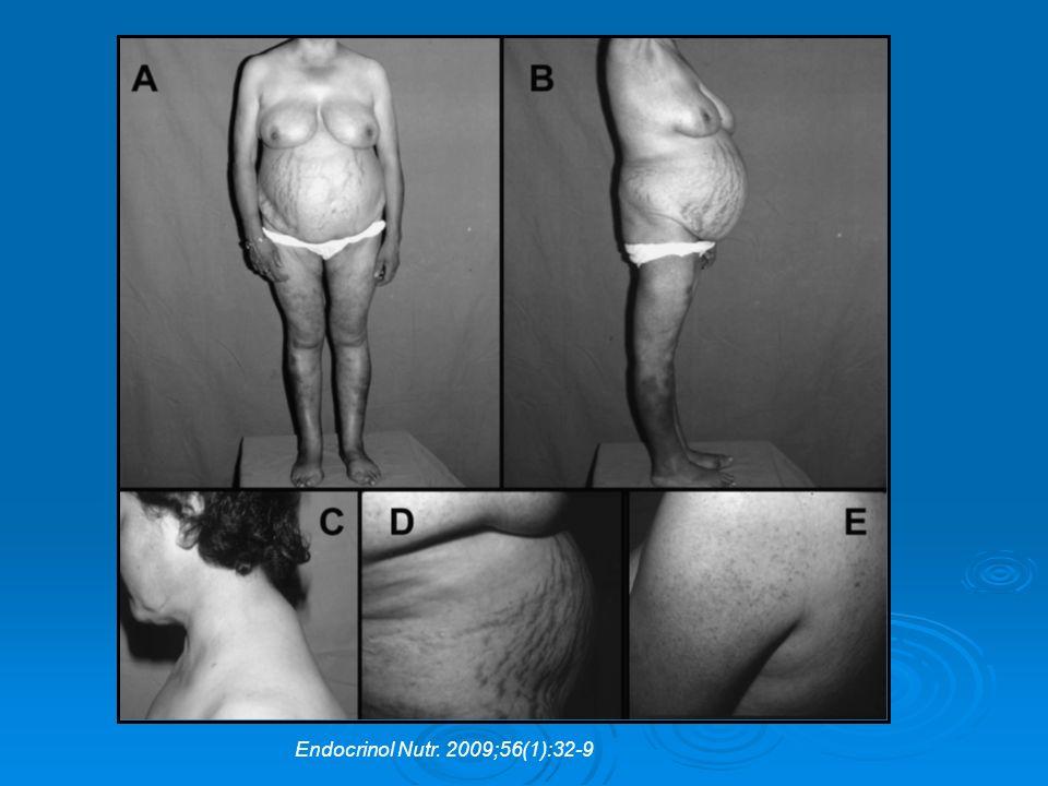 Endocrinol Nutr. 2009;56(1):32-9