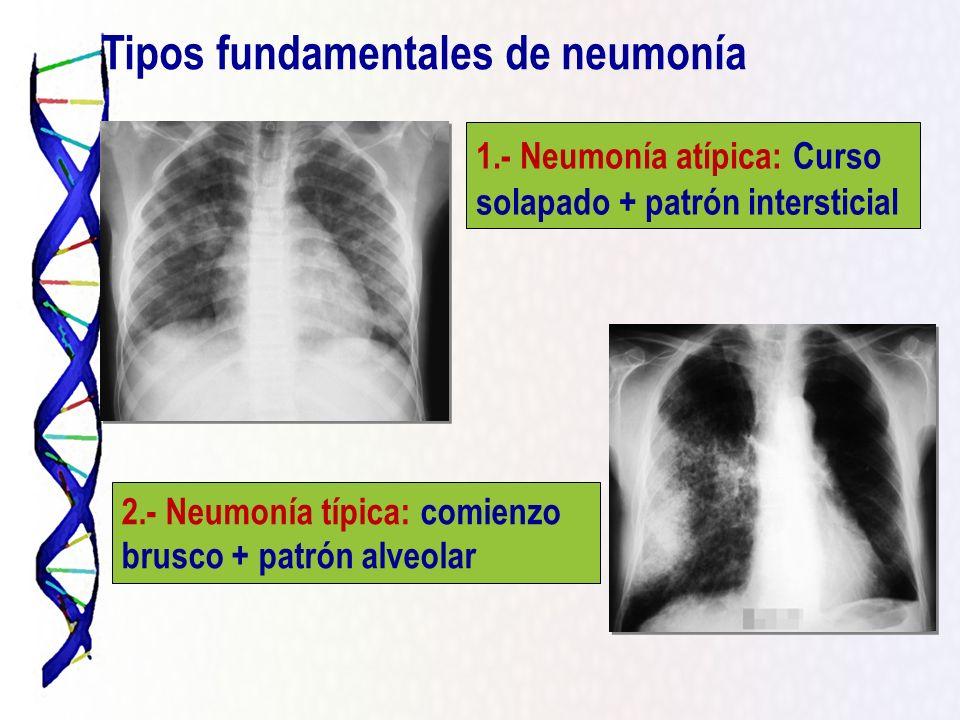 1.- Neumonía atípica: Curso solapado + patrón intersticial 2.- Neumonía típica: comienzo brusco + patrón alveolar Tipos fundamentales de neumonía