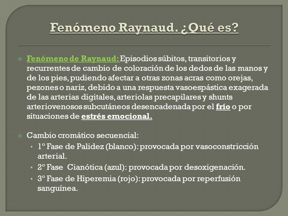 Fenómeno de Raynaud: Episodios súbitos, transitorios y recurrentes de cambio de coloración de los dedos de las manos y de los pies, pudiendo afectar a