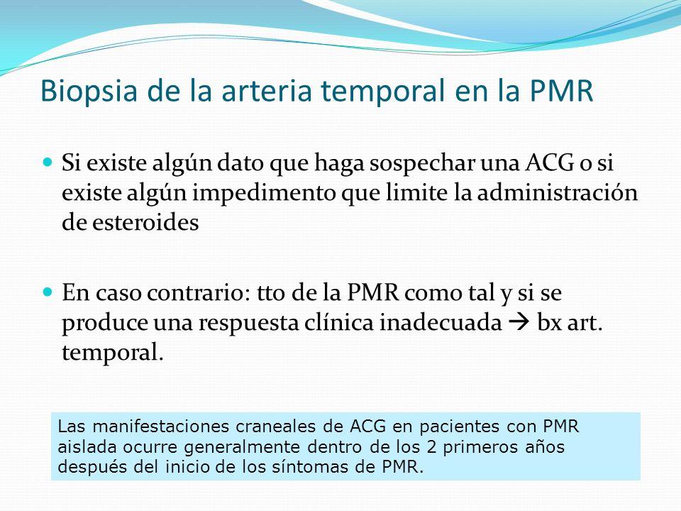 TRATAMIENTO La respuesta a AINEs es parcial y transitoria no prescribir La respuesta al tto con esteroides es espectacular y rápida, en < 72 h.