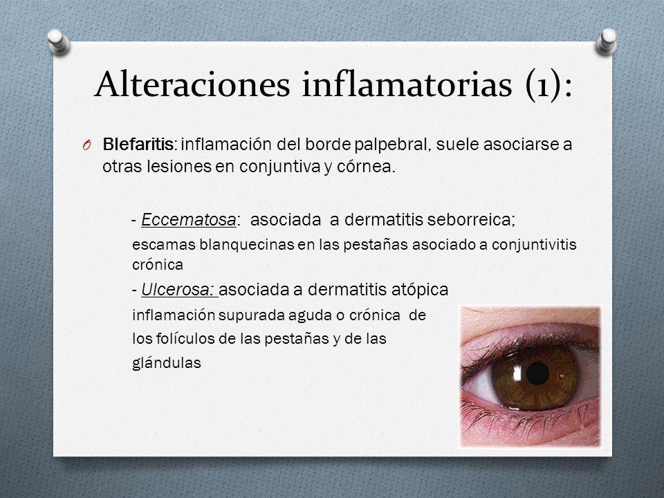 Alteraciones inflamatorias (1): O Blefaritis: inflamación del borde palpebral, suele asociarse a otras lesiones en conjuntiva y córnea. - Eccematosa: