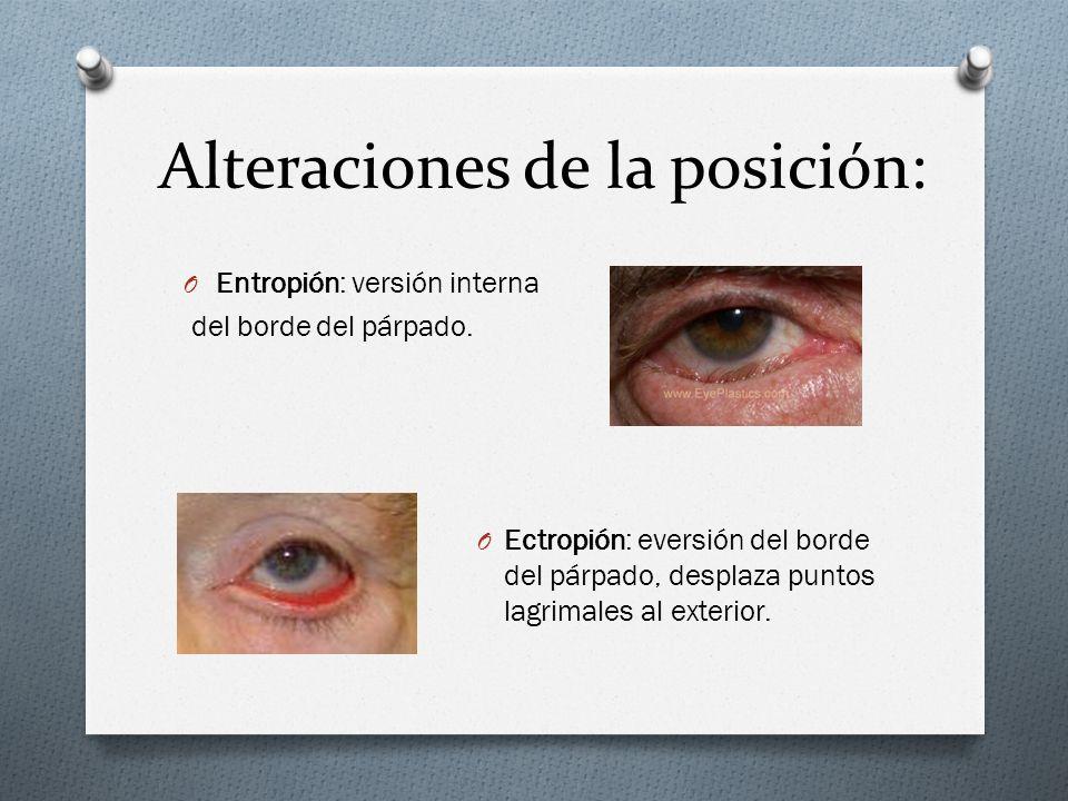 Patología tumoral: 1,Tumores benignos O Epiteliales (verrugas, papilomas, cuernos cutáneos,…XANTELASMAS…....) O Vasculares (hemangioma plano, hemangioma cavernoso…) O Nerviosos (Neurofiblomas) O Pigmentados (Nevus) 2,Lesiones precancerosas O Queratosis senil 3,Tumores malignos O Epitelioma basocelular (90% de los malignos) O Carcinoma espinocelular (metástasis) O Adenocarcinoma : sospecharlo tras chalazión que recidiva tras Qx!!.