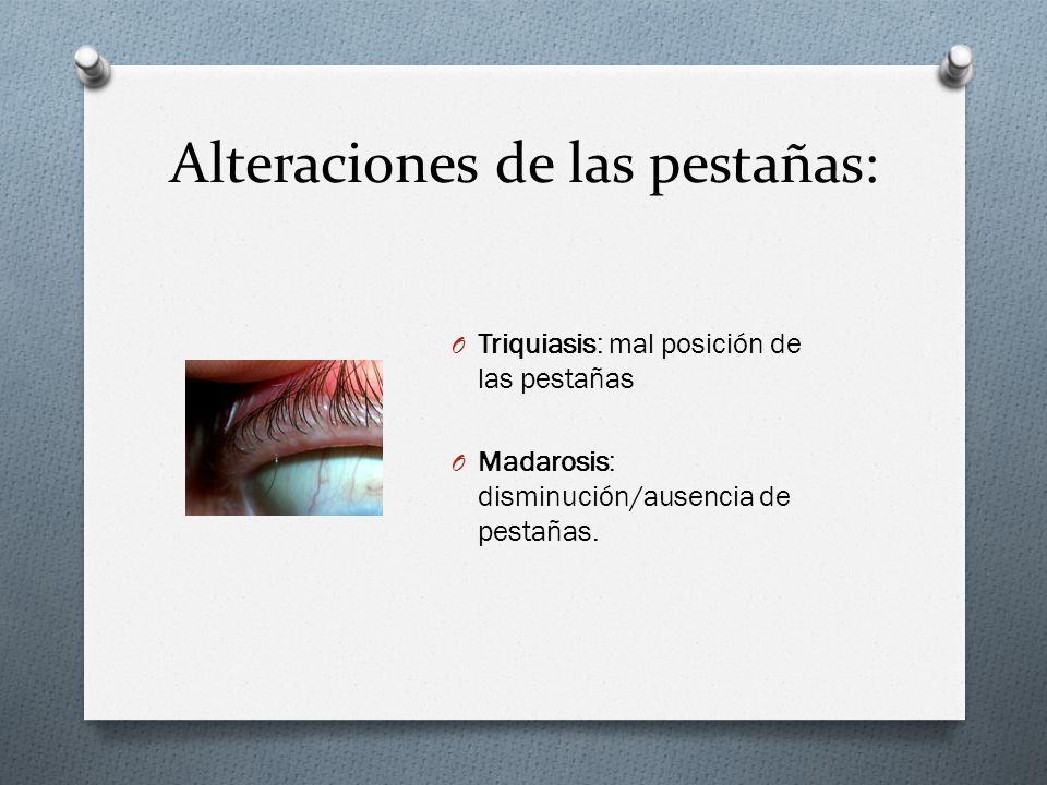 Alteraciones de las pestañas: O Triquiasis: mal posición de las pestañas O Madarosis: disminución/ausencia de pestañas.