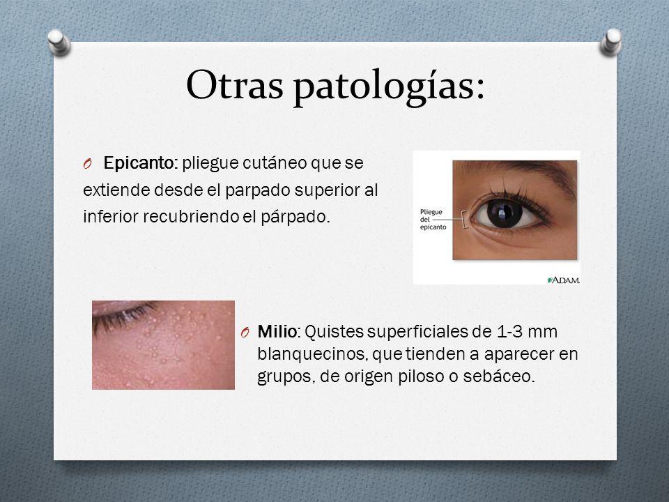 Otras patologías: O Epicanto: pliegue cutáneo que se extiende desde el parpado superior al inferior recubriendo el párpado. O Milio: Quistes superfici