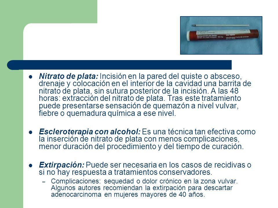 Nitrato de plata: Incisión en la pared del quiste o absceso, drenaje y colocación en el interior de la cavidad una barrita de nitrato de plata, sin su
