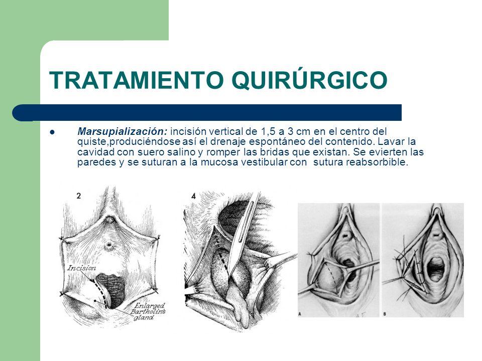 TRATAMIENTO QUIRÚRGICO Marsupialización: incisión vertical de 1,5 a 3 cm en el centro del quiste,produciéndose así el drenaje espontáneo del contenido