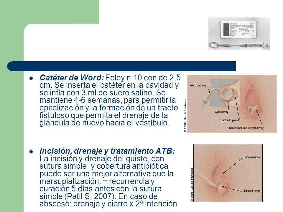 Catéter de Word: Foley n.10 con de 2,5 cm. Se inserta el catéter en la cavidad y se infla con 3 ml de suero salino. Se mantiene 4-6 semanas, para perm