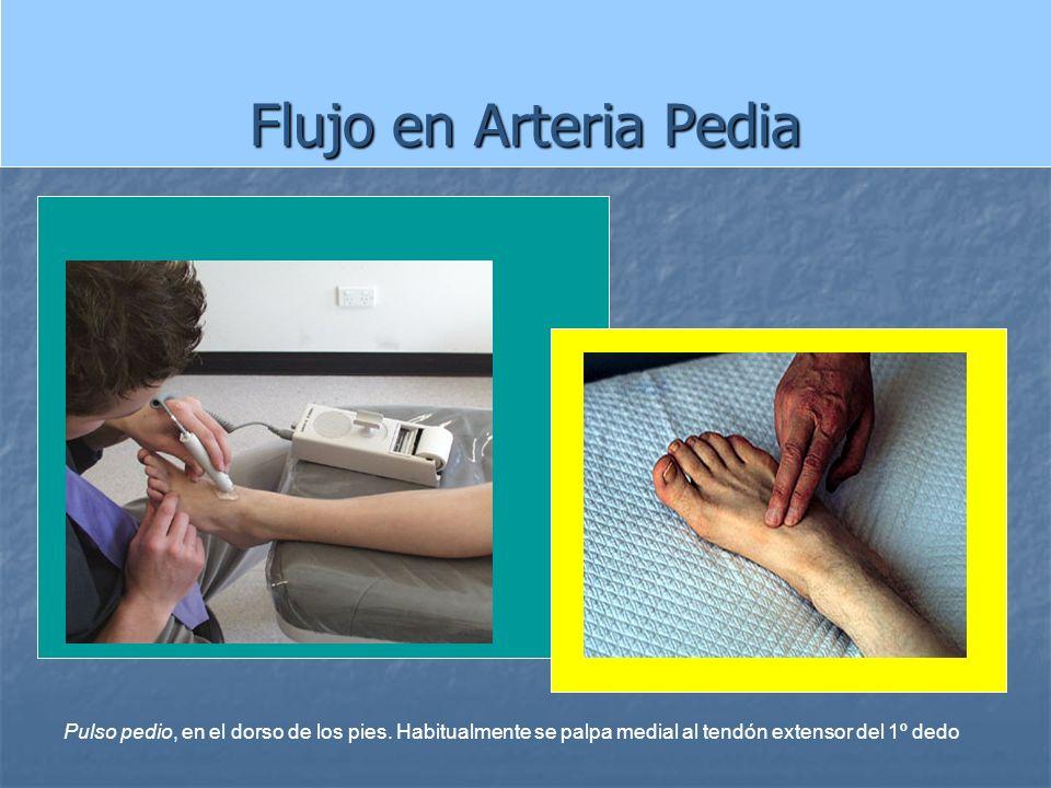 Flujo en Arteria Pedia Pulso pedio, en el dorso de los pies. Habitualmente se palpa medial al tendón extensor del 1º dedo