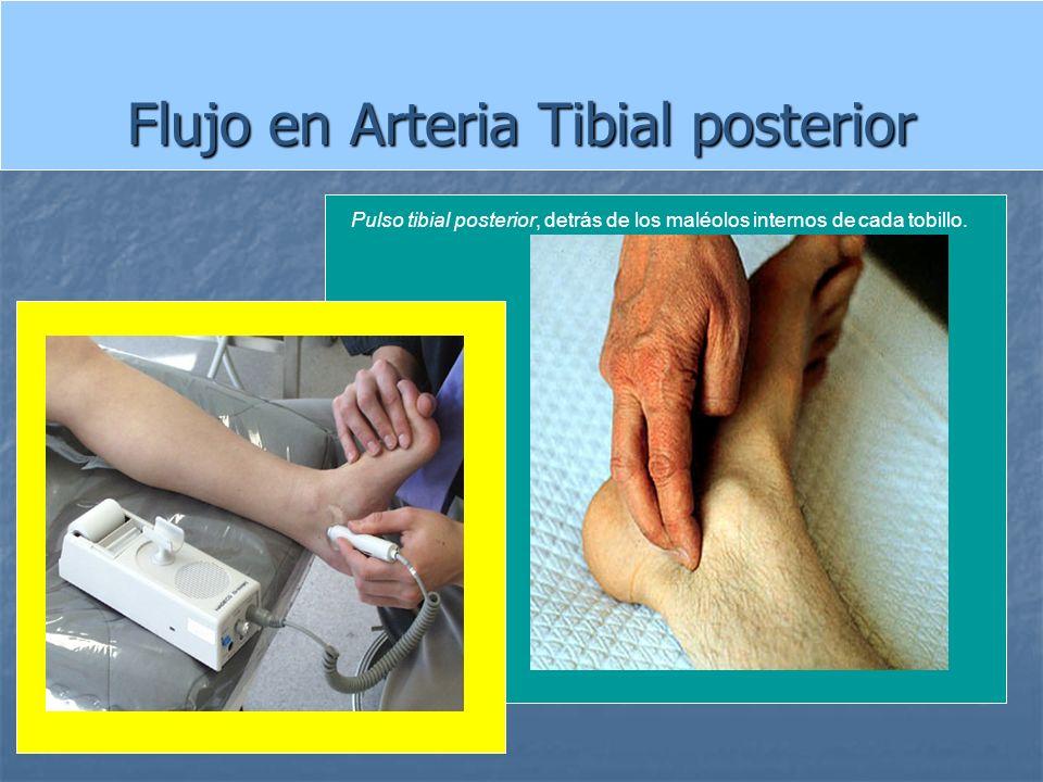 Flujo en Arteria Tibial posterior Pulso tibial posterior, detrás de los maléolos internos de cada tobillo.