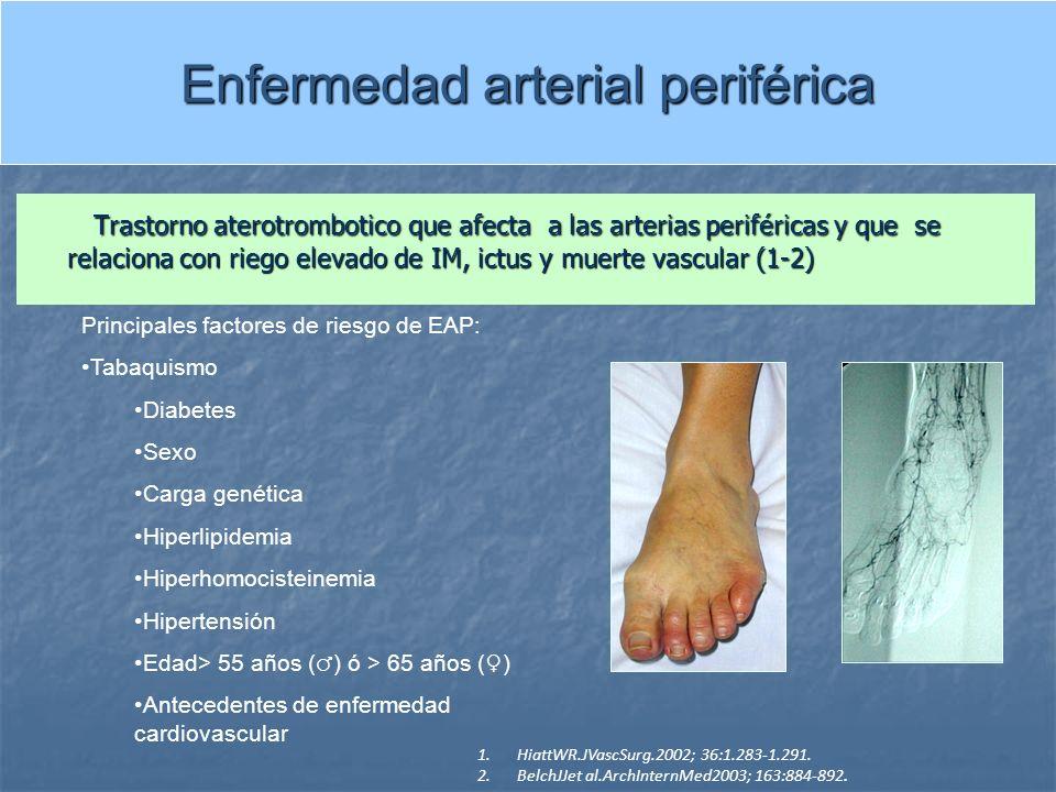 Enfermedad arterial periférica Trastorno aterotrombotico que afecta a las arterias periféricas y que se relaciona con riego elevado de IM, ictus y mue