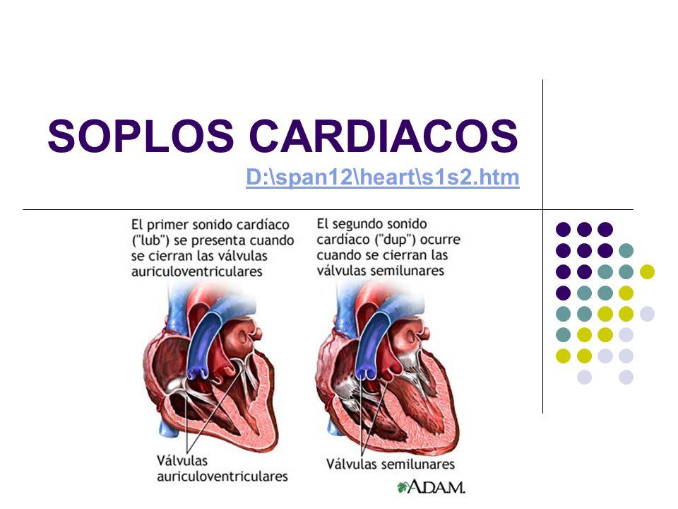 DEFINICIÓN Los soplos cardiacos son ruidos adicionales del corazón que se auscultan entre los dos ruidos cardiacos normales y que son producidos por las vibraciones de un flujo sanguíneo turbulento.