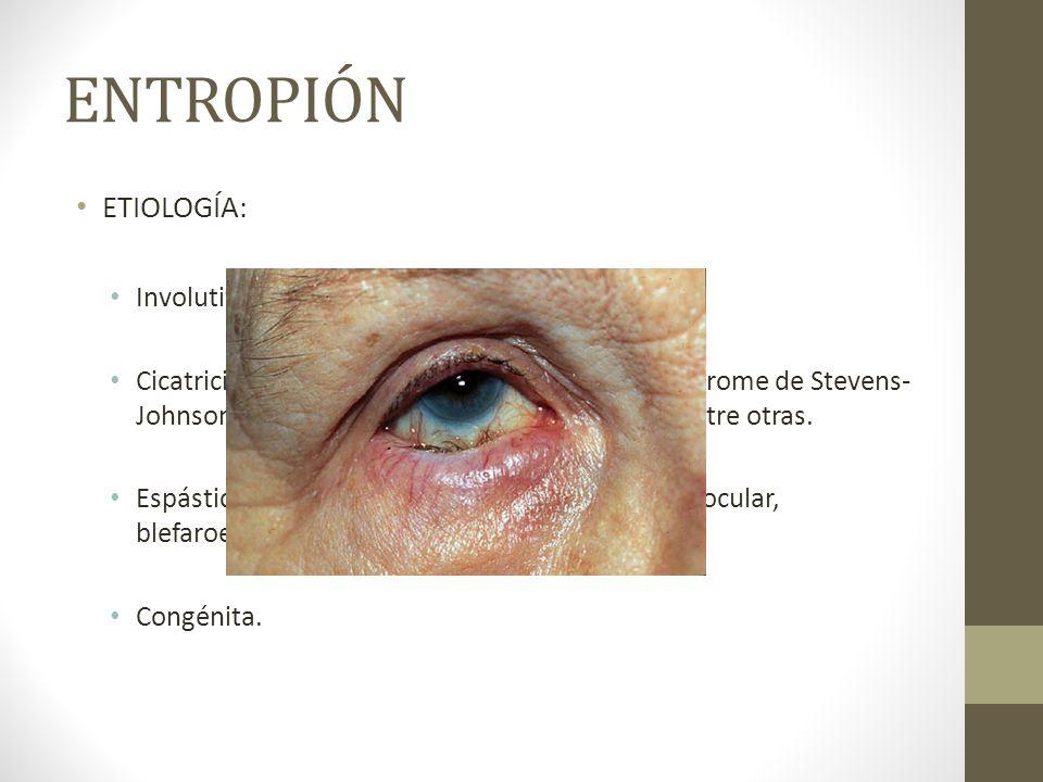 ENTROPIÓN ETIOLOGÍA: Involutiva por envejecimiento. Cicatricial en el penfigoide ocular cicatricial, síndrome de Stevens- Johnson, quemaduras, traumat