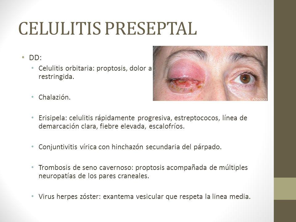 CELULITIS PRESEPTAL DD: Celulitis orbitaria: proptosis, dolor al mover ojo, movilidad restringida. Chalazión. Erisipela: celulitis rápidamente progres