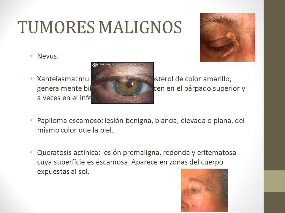 TUMORES MALIGNOS Nevus. Xantelasma: multiples placas de colesterol de color amarillo, generalmente bilaterales, que aparecen en el párpado superior y