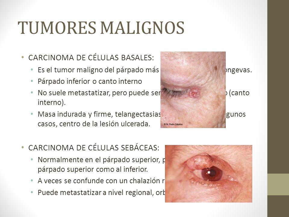 TUMORES MALIGNOS CARCINOMA DE CÉLULAS BASALES: Es el tumor maligno del párpado más frecuente. Edades longevas. Párpado inferior o canto interno No sue